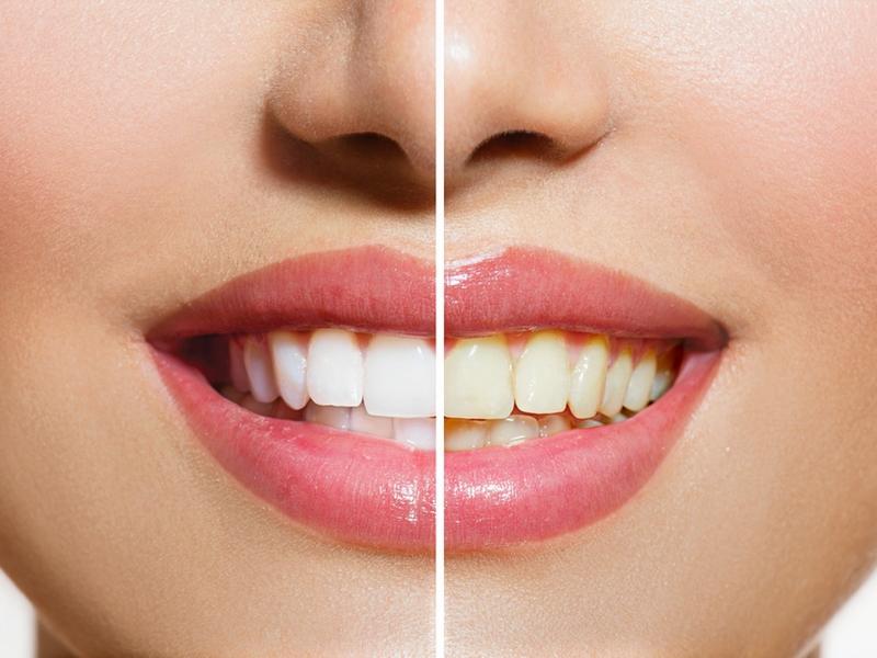أفضل-معجون-أسنان